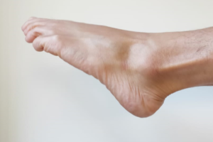 ankle flexion exercise